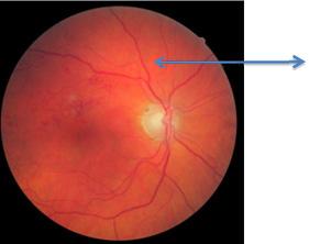 Retina bloeding bij een oog