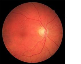 Retina bloeding bij een oog genezen